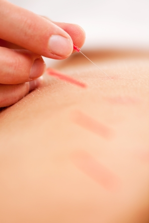 stimulate: Macro detail of an acupuncturist rotating and stimulating a needle
