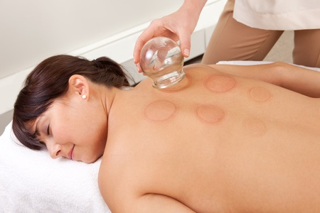 cupping glass cupping: Back detail of a young woman who just underwent an acupuncture fire cupping treatment Stock Photo