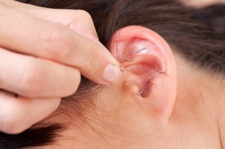 Acupuncture therapist placing needle in ear of patient Stock Photo