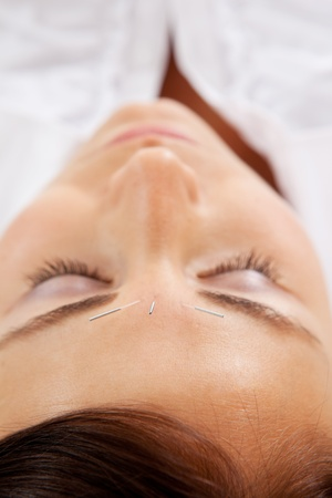 Facial acupuncture treatment on young attractive woman photo
