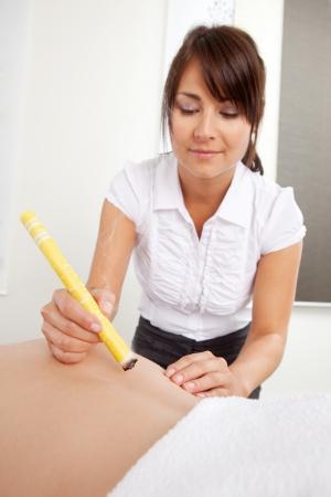 acupuncturist: Acupuntura terapeuta que utiliza la moxibusti�n para calentar un �rea de la espalda del paciente Foto de archivo