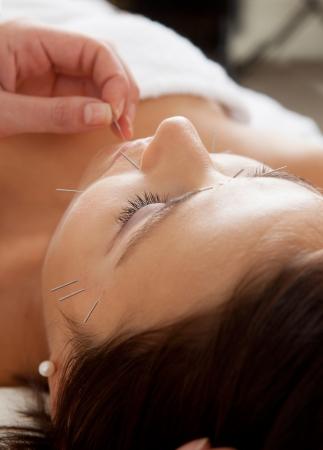 acupuntura china: Profesional terapeuta introduce una aguja de acupuntura en el mentón de un paciente durante un tratamiento facial