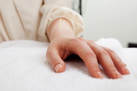 intestino grueso: Aguja de acupuntura en LI4 (intestino grueso 4) punto Foto de archivo
