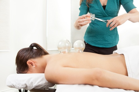 Acupuncturist heating up a glass cup for cupping acupuncture treatment photo