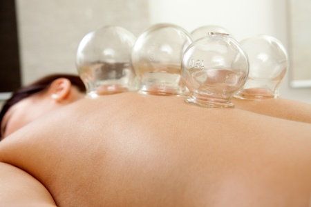 alternative medicine: Fire cupping cups on back of female patient in Acupuncture therapy