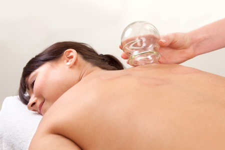 cupping therapy: Relaxed female with back exposed after a fire cupping treatment from an acupuncture therapist Stock Photo