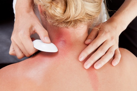 redness: Above view of woman receiving gua-sha treatment on back and neck