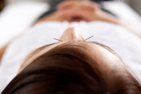 Macro detail of three needles in face of acupuncture patient photo