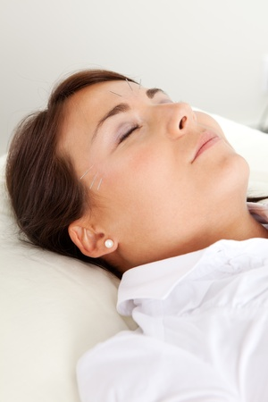 acupuntura china: Los pacientes de acupuntura relajado con los ojos cerrados, sometidos a un tratamiento de belleza facial