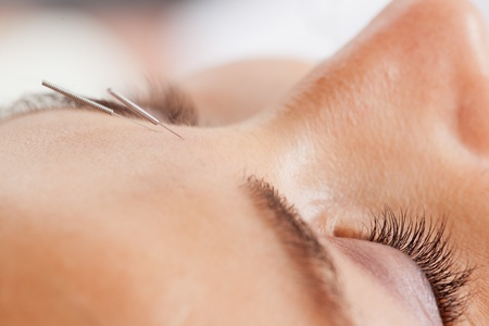 body treatment: Macro detail of facial acupuncture treatment, shallow DOF focus on eye