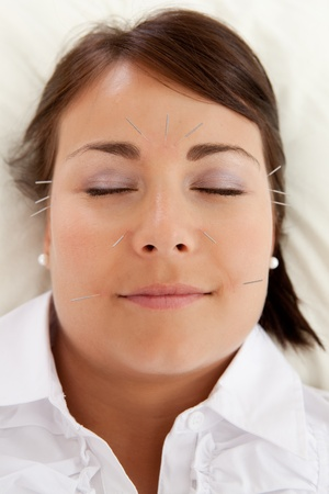 rejuvenation: Acupuncture patient undergoing a facial beauty treatment Stock Photo