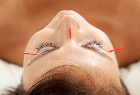 chinese medicine: Anti-aging acupuncture treatment on young attractive female patient Stock Photo