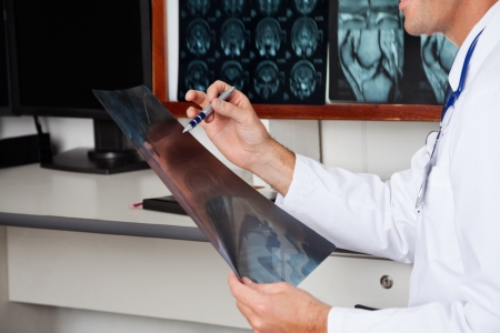 scan: Radiologist Holding X-ray Stock Photo