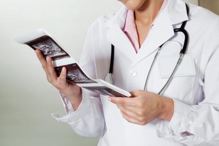 Radiologist Holding Ultrasound Print Stock Photo - 18291714