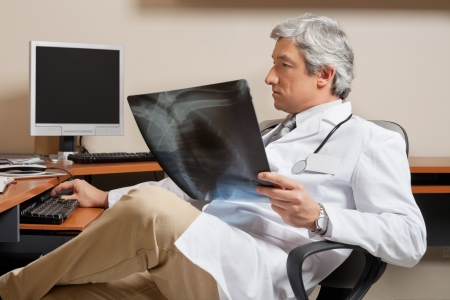 Radiologist Holding Shoulder X-ray Stock Photo - 18521635