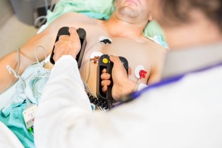 resuscitation department: High angle view of doctor defibrillating male patient in hospital
