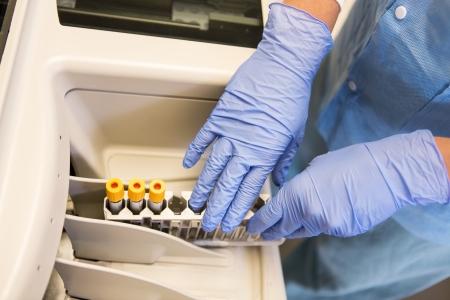 analyzer: Top view of lab tech loading samples in a chemistry analyzer