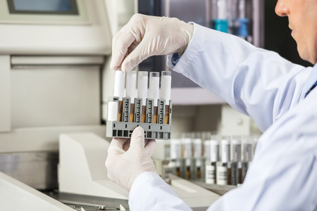 lab tech: Researcher Analyzing Urine Samples In Lab Stock Photo