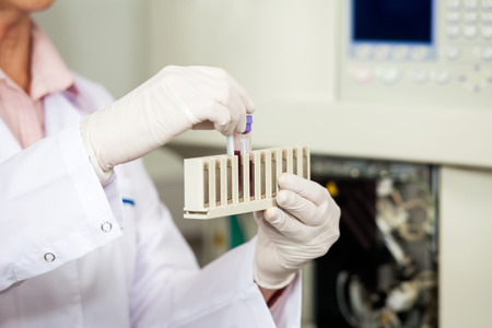 pathologist: Cropped image of female medical worker analyzing blood samples in laboratory Stock Photo