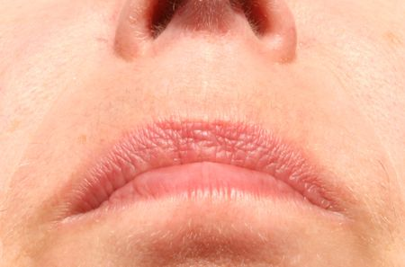 hair problem: facial hair problem above the lips of a woman