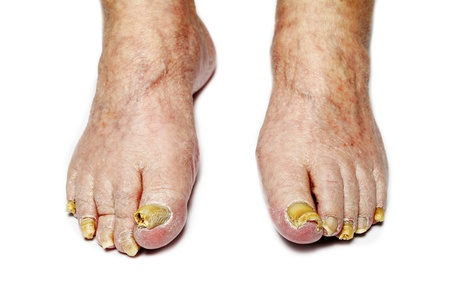 toenail: Fungus Infection on Feet of Man