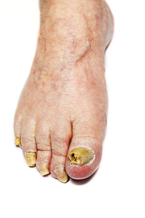 foot fungus: Fungus Infection on Nails of Man