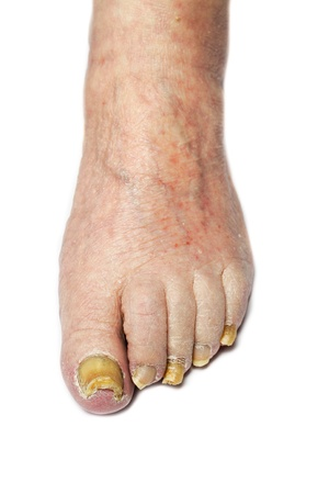 toenail fungus: Fungus Infection on Nails of Man