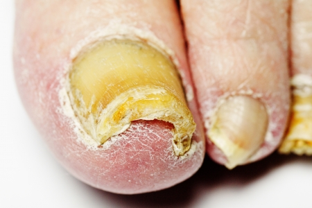 podiatrist: Fungus Infection on Nails of Man