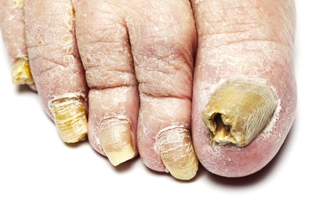 Fungus Infection on Nails of Man photo