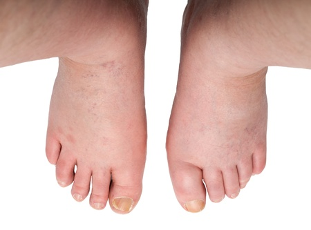 swollen legs with fungal infection isolated on white background Stock Photo