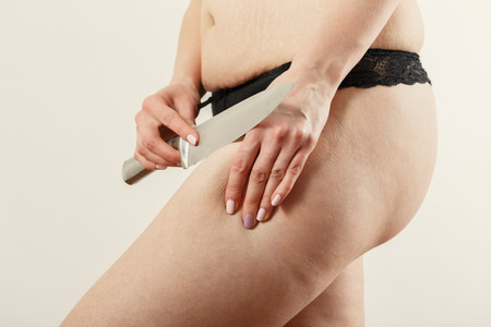 cutting with knife oversized female hip cellulite on white background Imagens