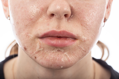 female face with burned skin after chemical peeling Stock Photo - 116540991