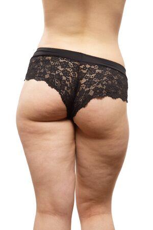 übergroße Frau mit Cellulite auf weißem Hintergrund isoliert