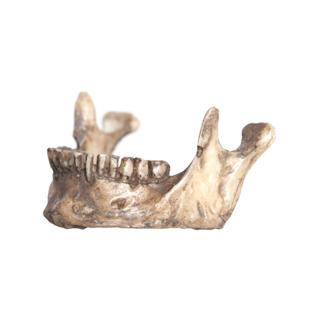 Human lower jaw isolate on a white background Stock Photo