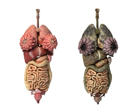 colon cancer: Photorealistic 3D rendering, of Female full internal organs, front view, comparison between healty and unhealty organs.