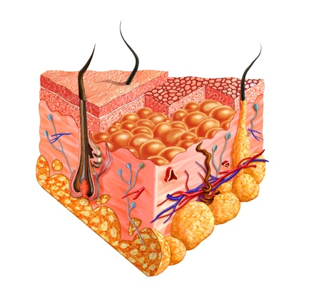 muscle cell: Human skin cutaway diagram, with several details. 2D digital illustration with clipping path, on white background.