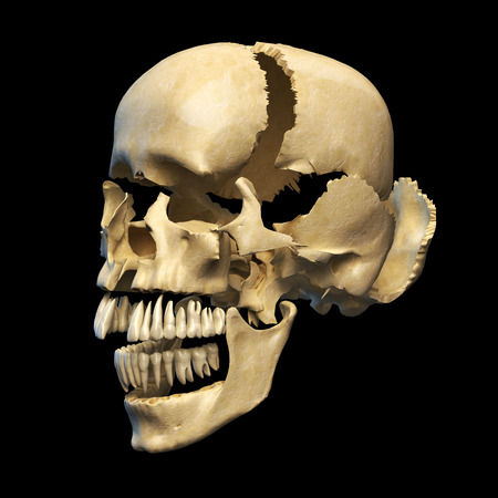 Human skull with parts exploded  Perspective view, on black background  Clipping path included