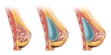 seni: Schema Donna protesi mammaria sezione trasversale di confronto, sotto e sopra il muscolo pettorale Anatomia immagine su sfondo bianco, con percorso di clipping incluso