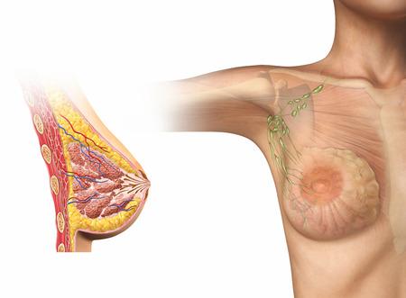 pechos: Mujer corte de pecho, diagrama de la secci�n transversal. Con tambi�n la mujer figura que muestra gl�ndulas Linf�tico, m�sculos y huesos. En el fondo blanco. Anatom�a de la imagen.