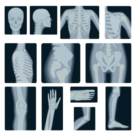 wrist joint: Extreme quality realistic  collage set of many X-rays shots. X-ray multiple part of adult people Illustration