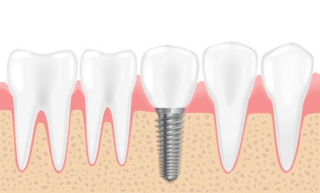 Healthy teeth and dental implant. Realistic vector illustration of tooth medical dentistry. Human teeth dental implantation.