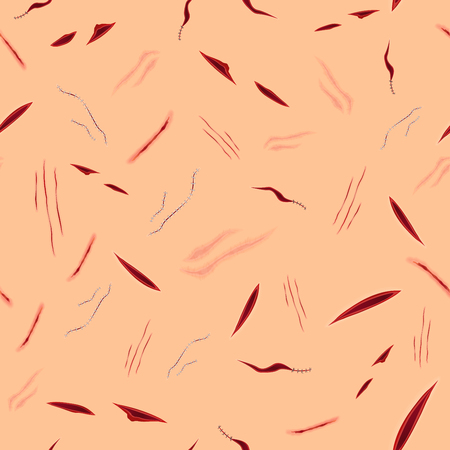 Seamless halloween pattern of surgical vector stitches, scars, bruise and slaughters on the skin Illusztráció