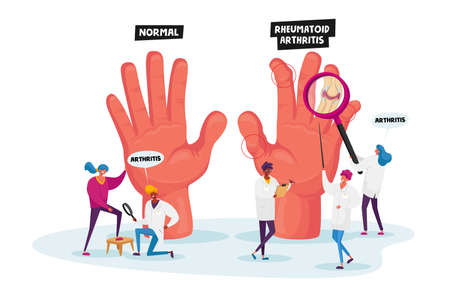Rheumatoid Arthritis Concept. Tiny Doctor Characters Examine Huge Hand with Joints Disease and Pathology, Arms Illness Vector Illustration