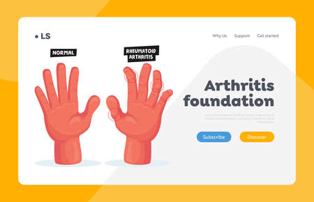 Normal and Sick Hands with Rheumatoid Arthritis Landing Page Template. Finger Joints Inflammation Healthcare, Treatment Ilustração