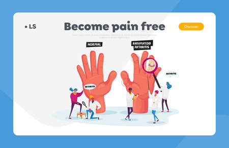 Rheumatoid Arthritis Landing Page Template. Tiny Doctor Characters Examine Huge Hand with Joints Disease, Arms Illness