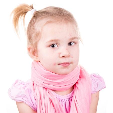pokrzywka: Chora dziewczynka z wietrznej odizolowane na biaÅ'ym Zdjęcie Seryjne