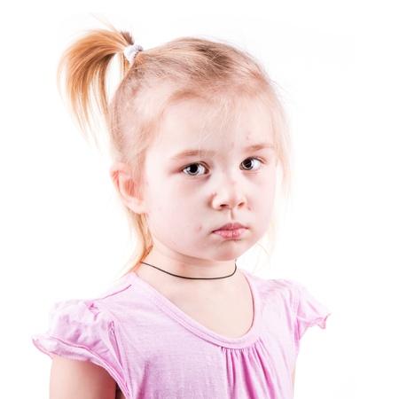 varicela: Ni�a enferma de varicela aislado en blanco Foto de archivo