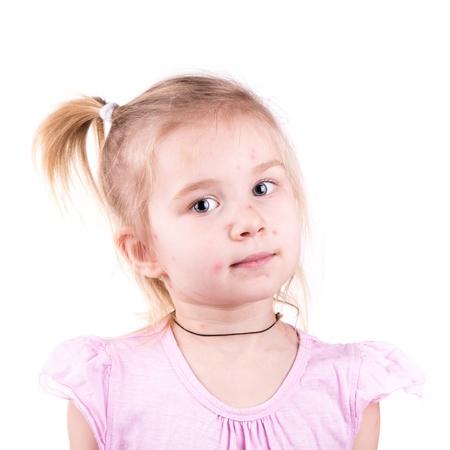 pokrzywka: Chorych Dziewczynka z ospy wietrznej odizolowane na białym