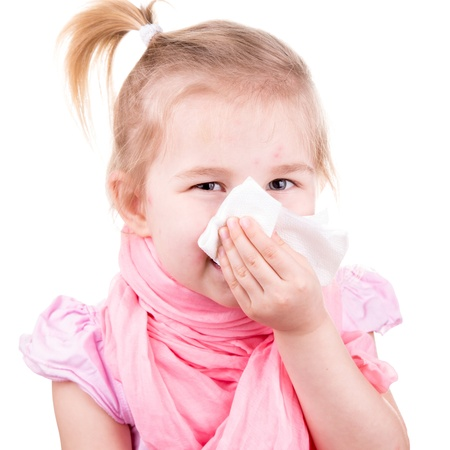 varicela: Ni�a enferma con varicela con el estornudo servilleta aislado en blanco Foto de archivo