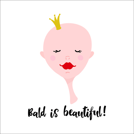 bald girl: Cartoon girl face on white background. Hairless girl. Bald is beautiful lettering. Cancer struggle support poster. Illustration